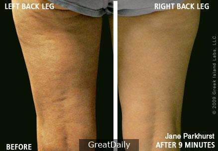 橘皮組織有救了! 大腿變得又細又滑~竟然只要5個步驟 ! 還不快分